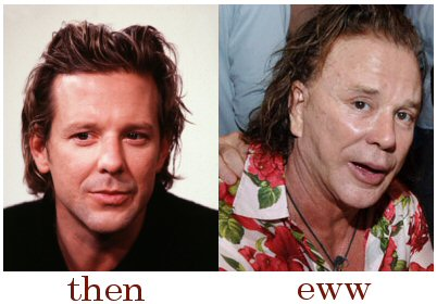 Mickey Rourke cosmetic surgery before and after pictures (image hosted by finkweb.org)